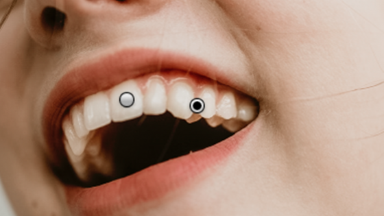 Lightroom Portrait: Zähne aufhellen: Verschiedene Korrekturbereiche